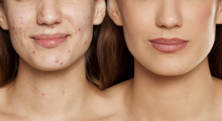 before after picture of lady with severe acne