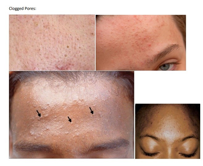 Acne with clogged pores requires specialized treatment.