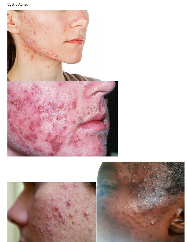 Cystic acne