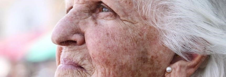 Elderly woman with aged skin. Wrinkles and sunspots