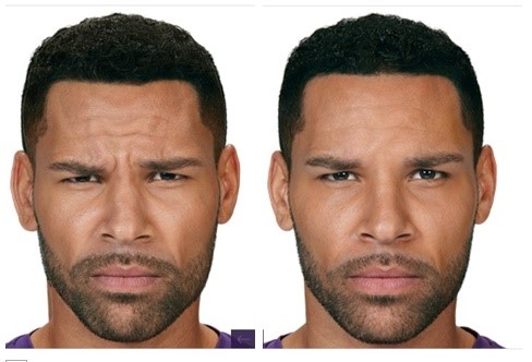 Before/After Botox Injection to frown lines