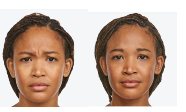 Before/After Jeuveau Injections to Frown Lines