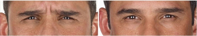 Before/After xeomin injection to frown lines