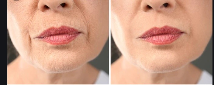 Anti-aging before after